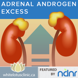 PCOS -Treating Adrenal Androgen Excess - White Lotus Clinic